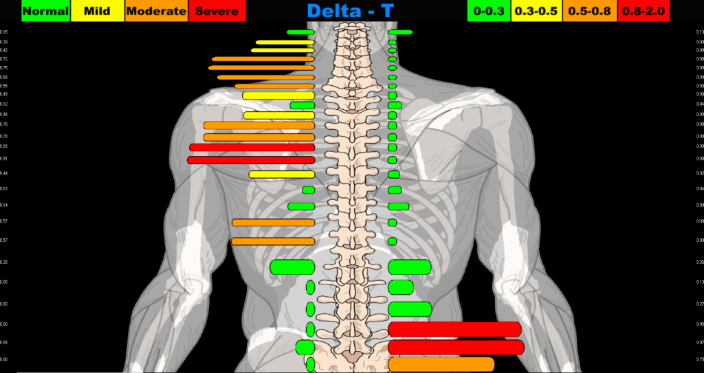 Spinal diagram